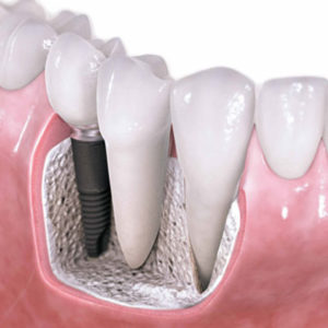 Oral surgery with implantology
