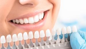 Estetska stomatologija i izbjeljivnje zubi
