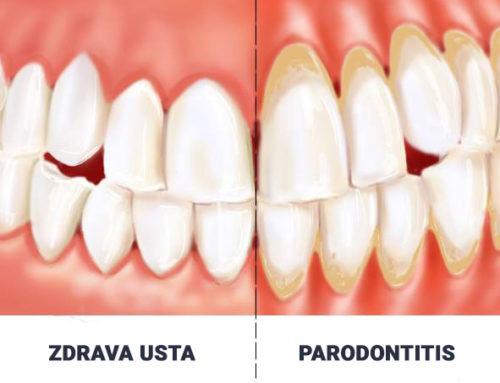 Što treba znati o parodontitisu?