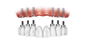 All on 6 zubni most na implantatima