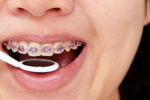 Ortodontski aparat - ispravljanje položaja zuba